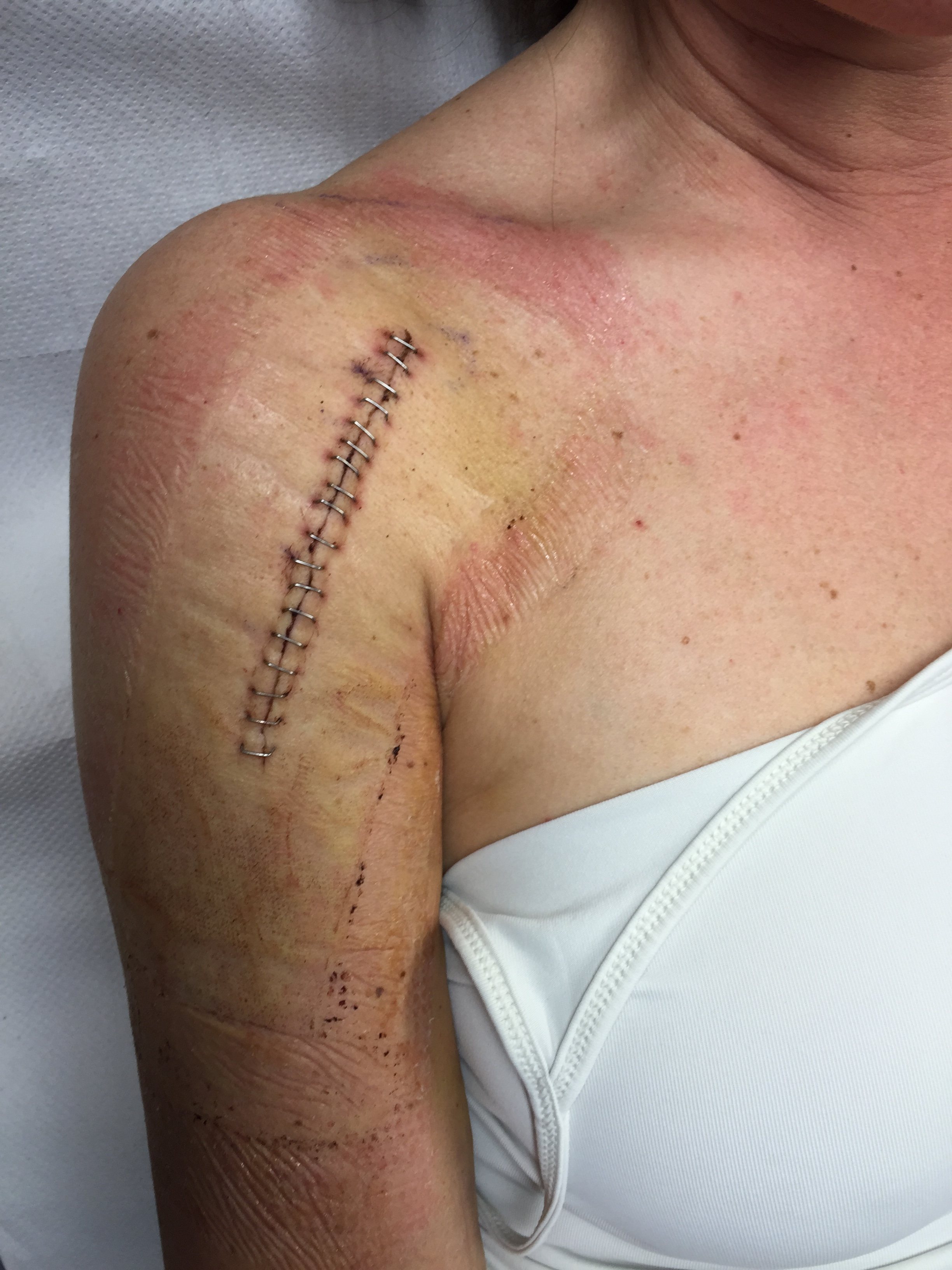 Clips Out And Lessons In Humility A Fractured Humerus Is Not A
